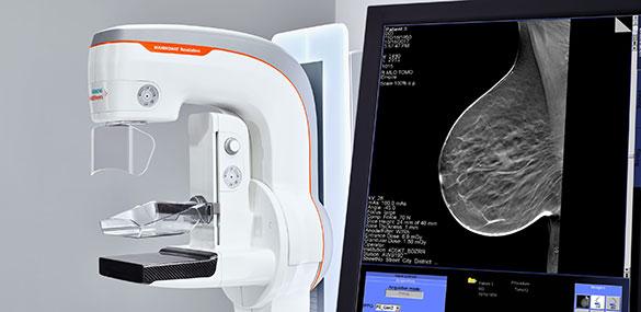 mamografie cu Mammomat Revelation