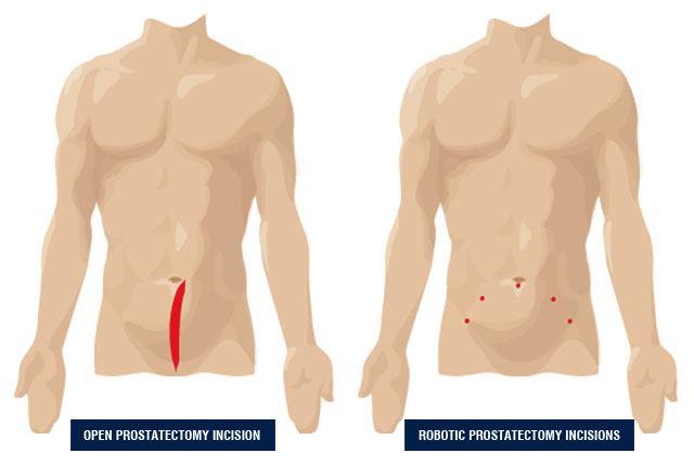 informatii despre operatia de prostata